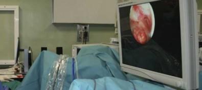 El Hospital de La Candelaria incorpora una técnica pionera para tratar miomas uterinos con radiofrecuencia